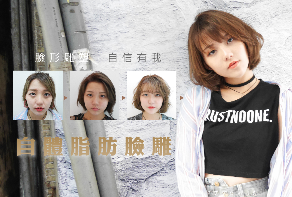 Read more about the article 臉形雕塑,自信有我