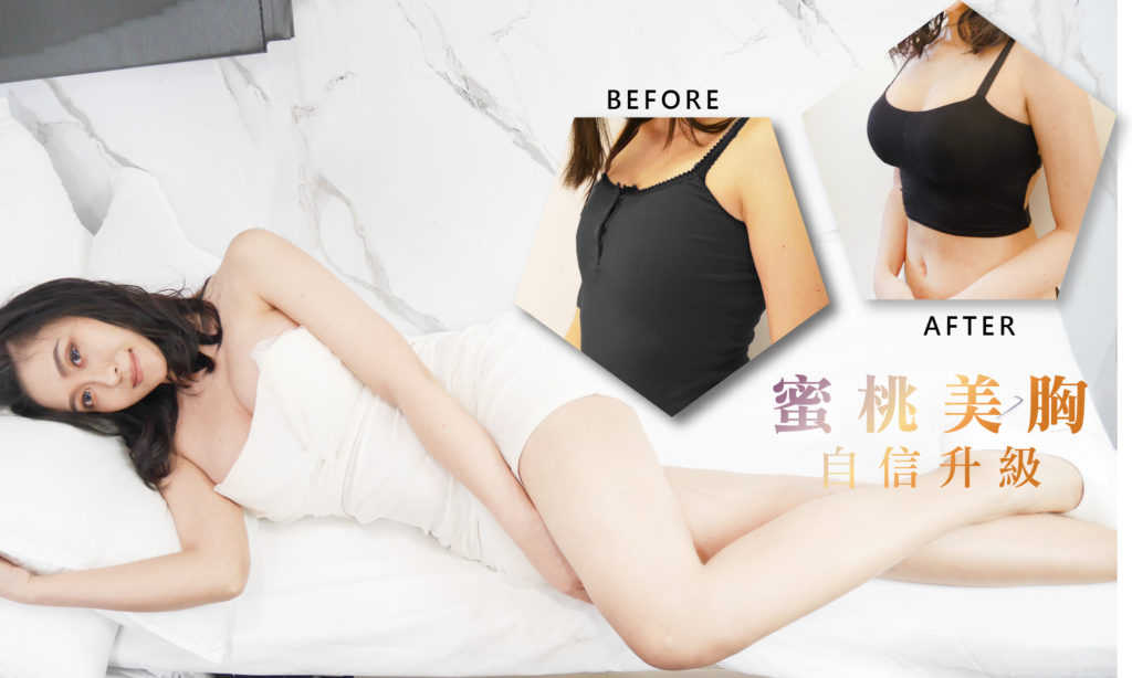 You are currently viewing 蜜桃美胸,自信升級
