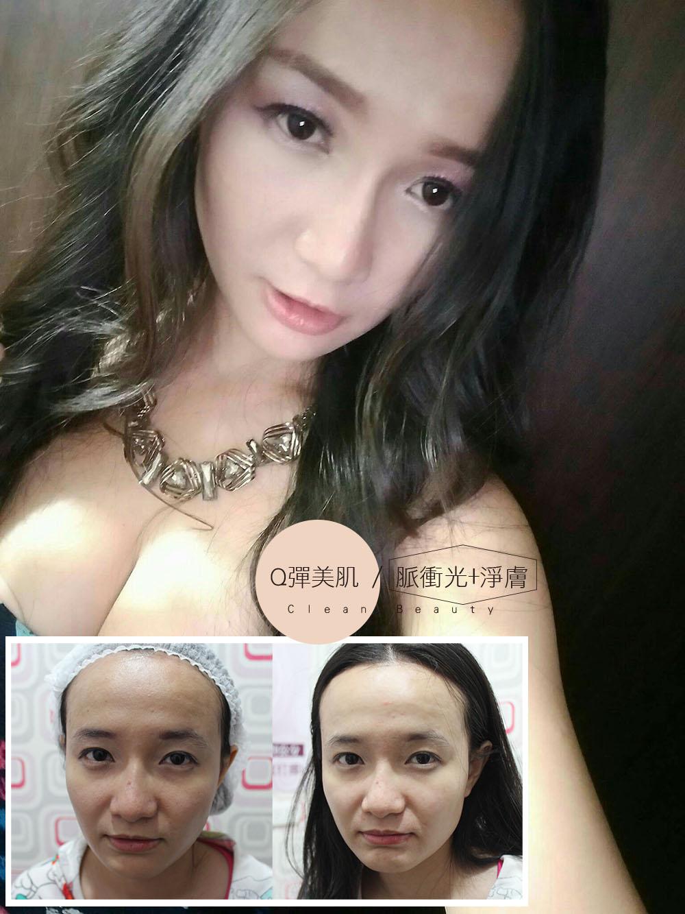 Read more about the article 雞尾酒雷射+午間美容脈衝光美肌好享受