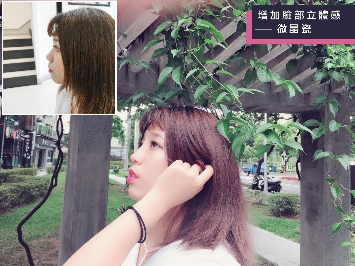 Read more about the article 不動刀挺鼻就靠微晶瓷,仿真隆鼻超自然