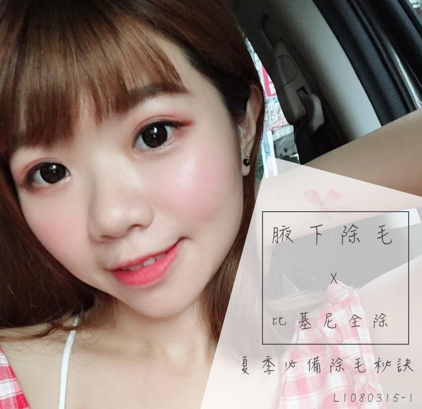 Read more about the article 除毛寵兒亞歷山大雷射腋下+比基尼全除
