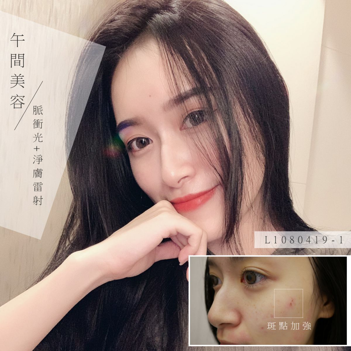 Read more about the article 午間美容!脈衝光+淨膚雷射
