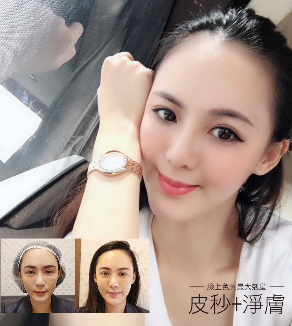 Read more about the article 美肌必備!picoway皮秒雷射