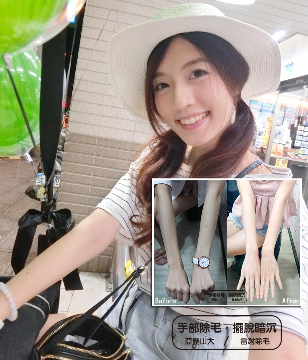 Read more about the article 夏季美肌小心機,機皇亞歷山大雷射除毛。